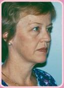 patient before neck lift surgery