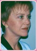 patient after neck lift surgery