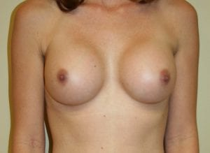 Breast Augmentation Patient After Surgery
