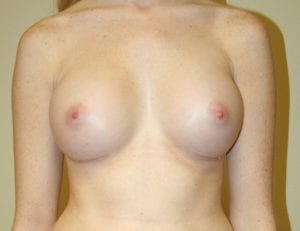 After Breast Augmentation Surgery