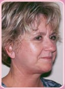 Patient After Rhytidectomy Procedure