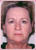 Patient Before Facelift Procedure