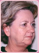 Patient Before Rhytidectomy Procedure