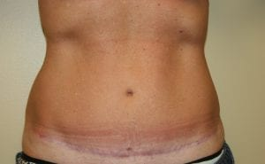 Patient After Tummy Tuck (abdominoplasty)