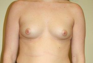 Before Breast Augmentation Procedure