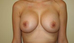 Breast Augmentation Procedure - After