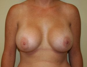 Photo of breasts after breast augmentation