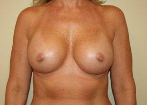 Photo of breasts after breast augmentation procedure