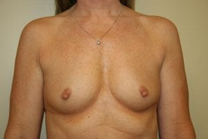 Photo of breasts before breast augmentation procedure