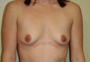Breast Augmentation Surgery - Before