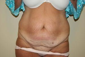 Before Abdominoplasty (Tummy Tuck) Procedure